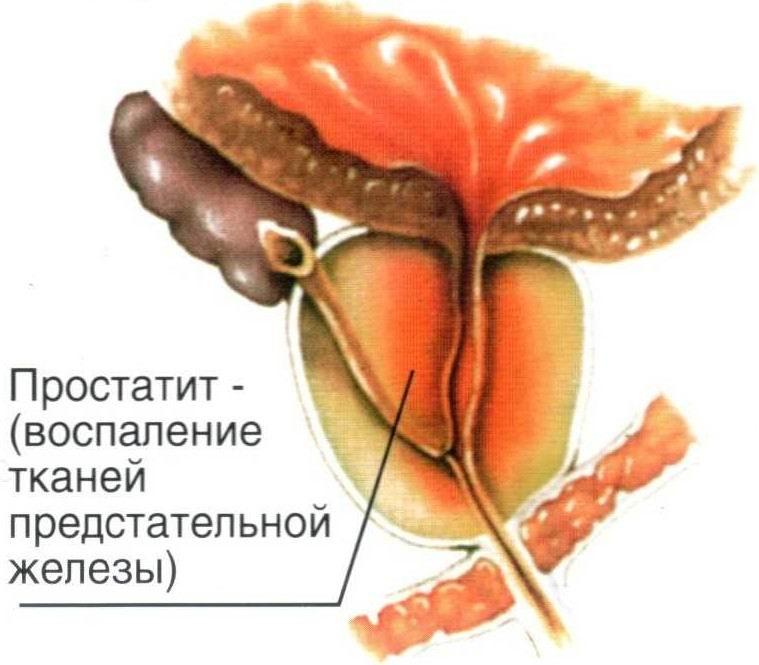 Размер предстательной железы у здорового мужчины