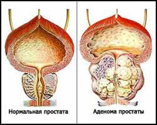 Есть эрекция при удалении предстательной железы