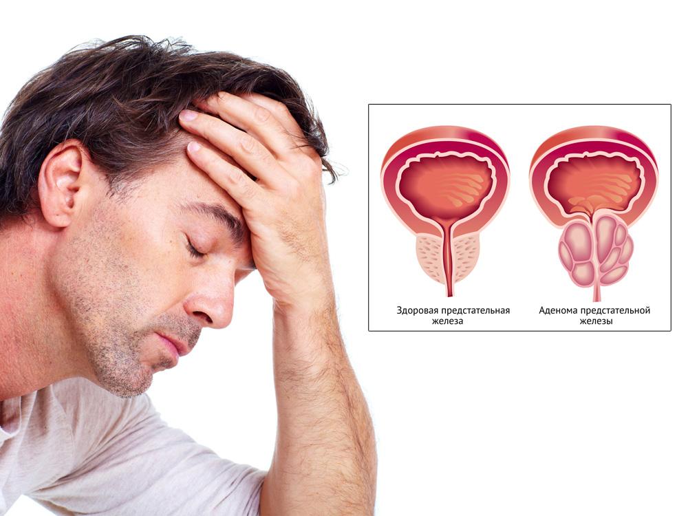 Современнейшее лечение простатита