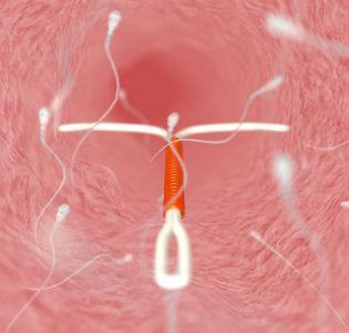 как ставят внутриматочную спираль