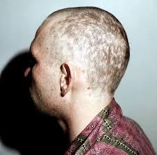 Алопеции заболевания волос псориаз